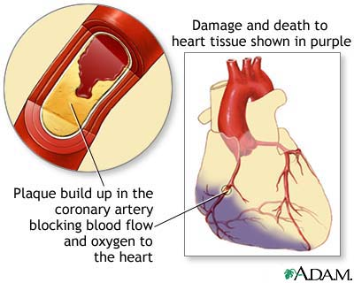 Ischemic Heart Disease and the Western World