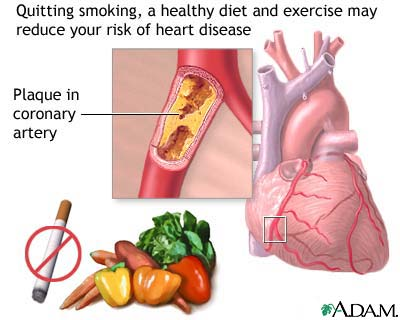 Heart Disease Prevention – Adopting a Healthier Lifestyle